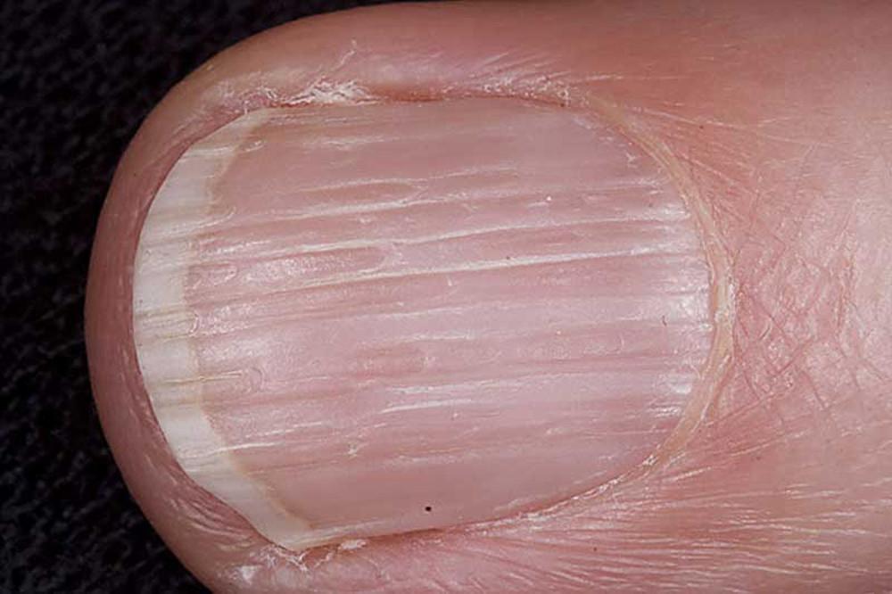 Бороздки на ногтях ног